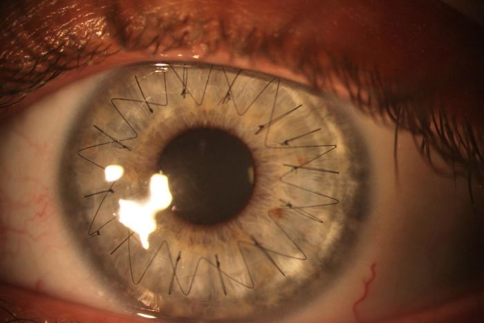 №16 Так выглядит глаз после трансплантации роговицы.