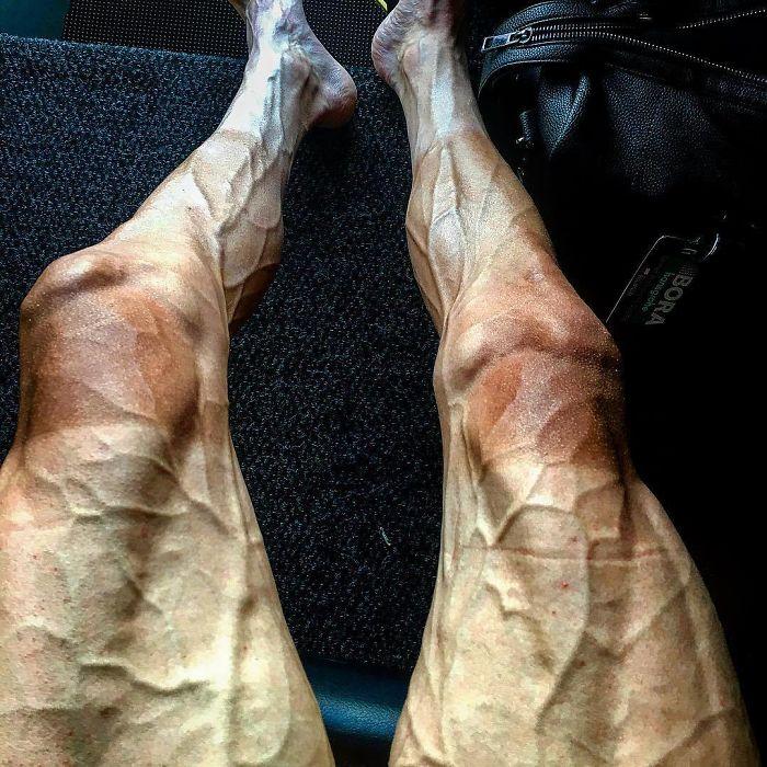 №23 Так выглядят ноги велосипедиста после гонки Tour De France.